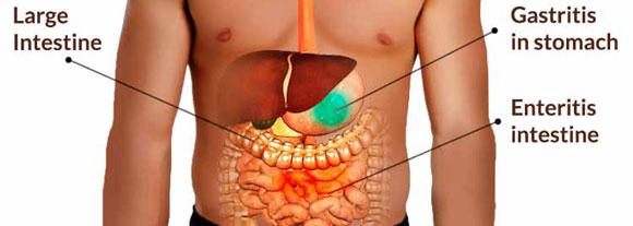 Gastritis Ulcer Treatment Stomach Ulcer